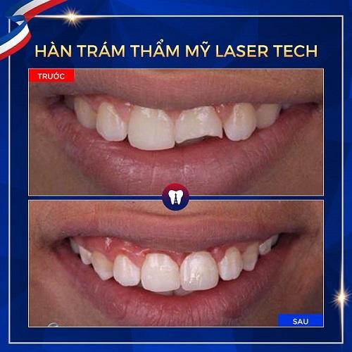 khách hàng review về giá hàn răng ở nha khoa paris