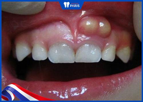 Đang nhức răng có nhổ được không