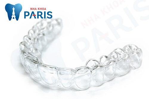 khay trong suốt - một sản phẩm trong các loại niềng răng