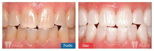 Tẩy trắng răng tại Hải Phòng có tốt không 3