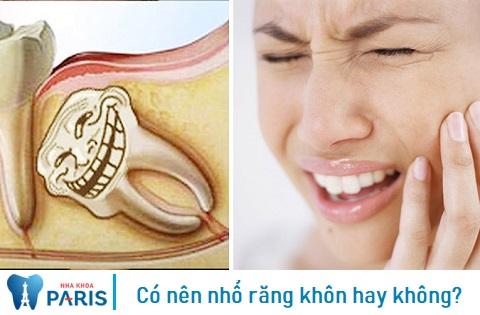 Có nên nhổ răng khôn? Nhổ răng khôn ở đâu tốt nhất TPHCM?