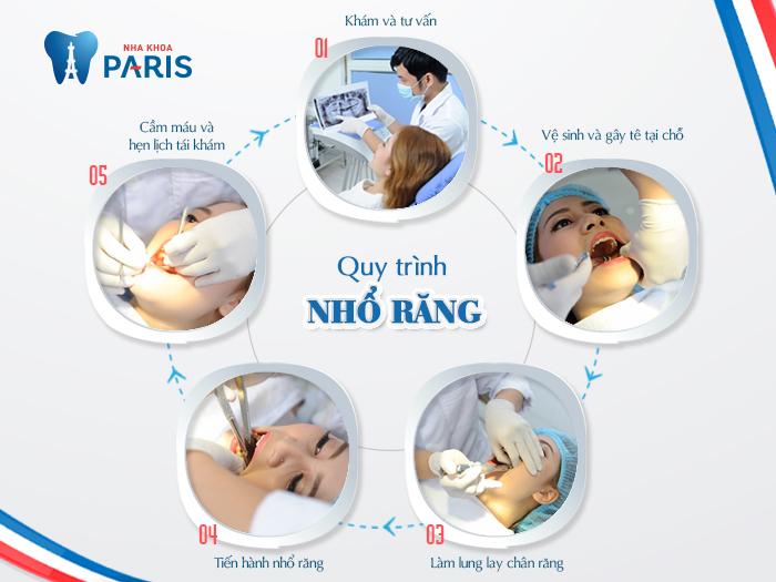 Quy trình tại nha khoa Paris