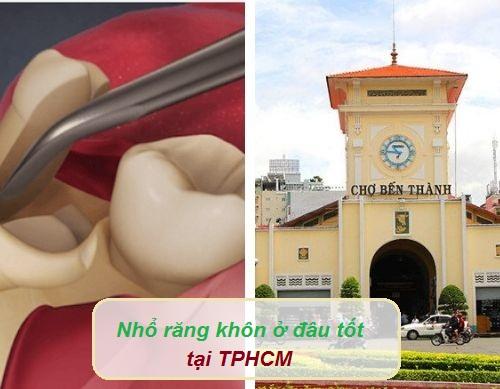 Nhổ răng khôn ở đâu tốt tại TPHCM