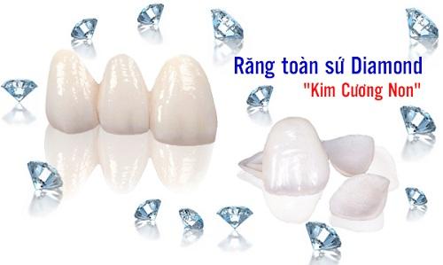 Bảng giá răng sứ kim cương