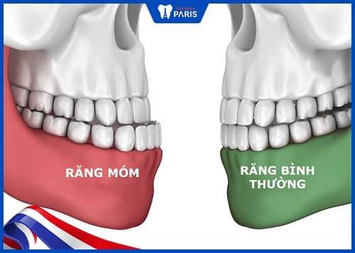 nguyên nhân khiến răng bị móm