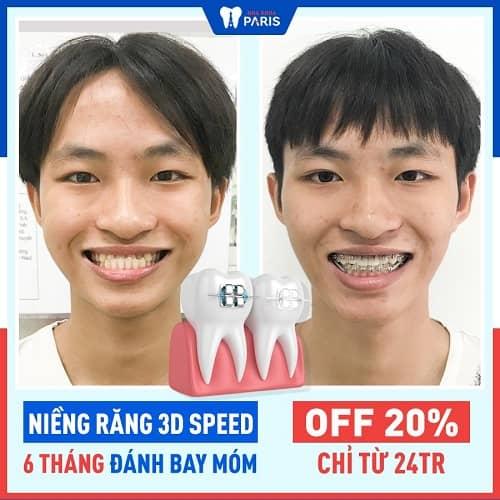 niềng răng móm có hiệu quả không