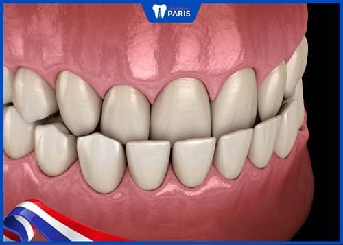 răng móm là như thế nào