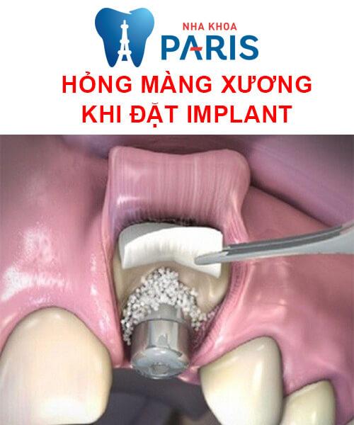hỏng màng xương khi đặt implant
