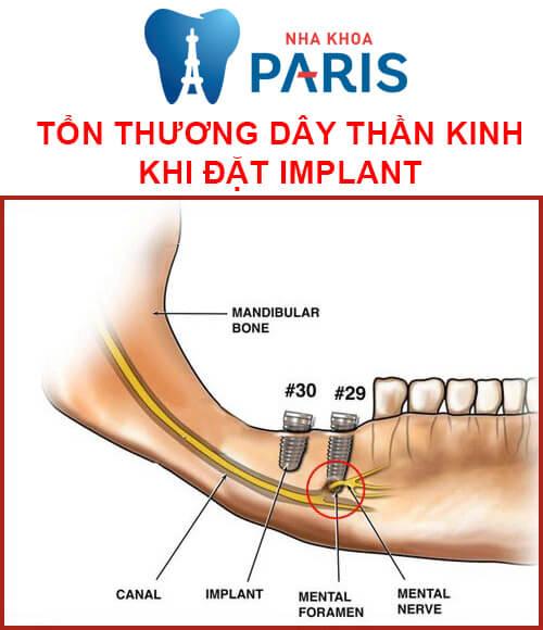 biến chứng implant - tổn thương dây thần kinh