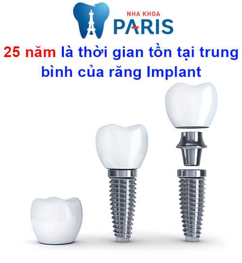 cấy ghép răng implant có bền không