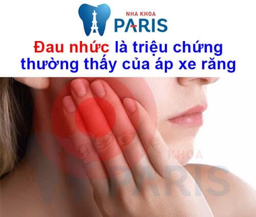 triệu chứng áp xe răng