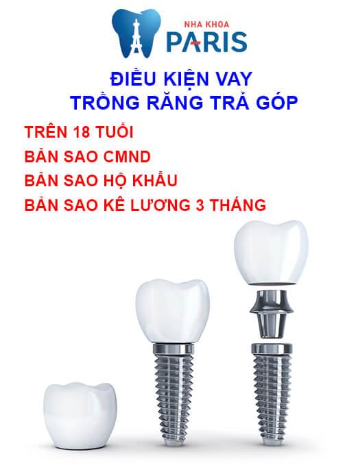 trồng răng implant trả góp