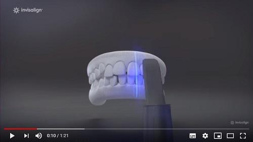 niềng răng invisalign bao lâu