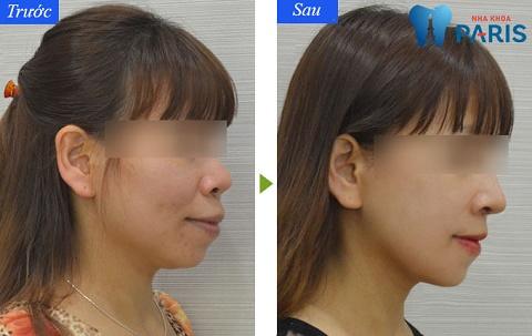 Phẫu thuật chỉnh hàm hô khắc phục được nhược điểm trên gương mặt.
