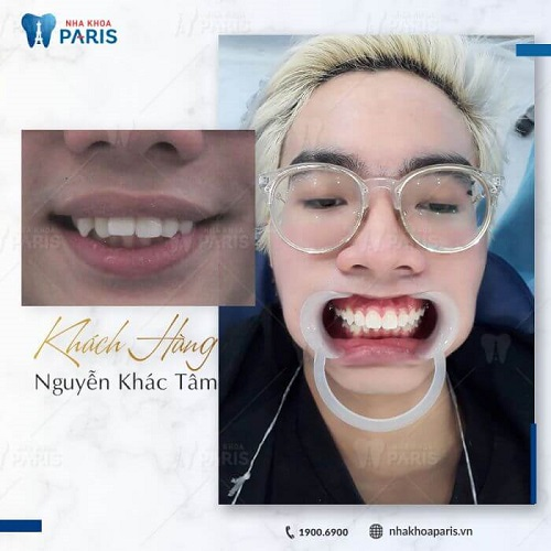 niềng răng ở đâu tốt