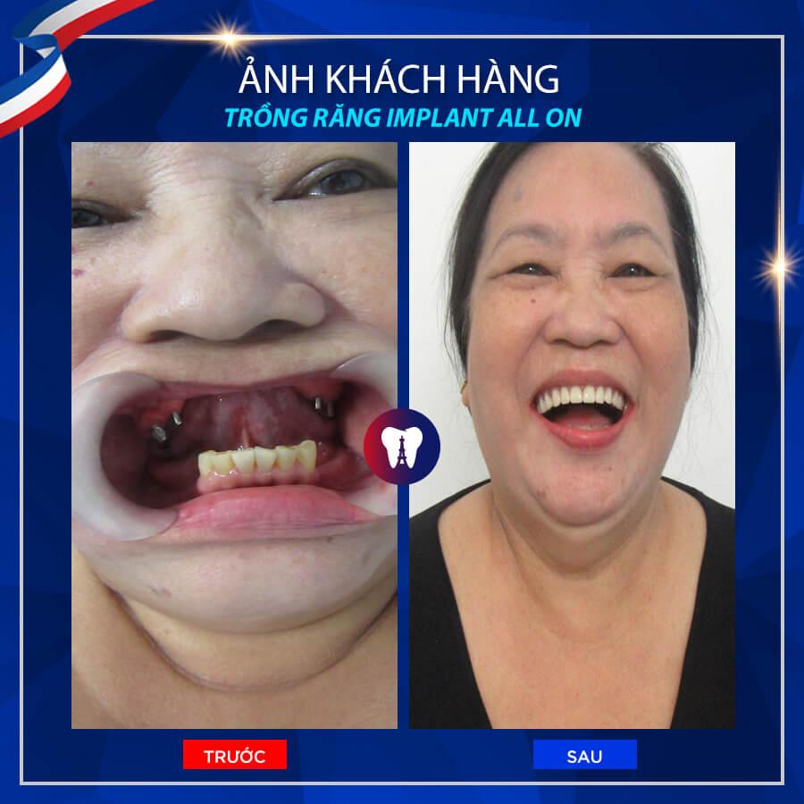 trồng răng implant ở đâu tốt hà nội