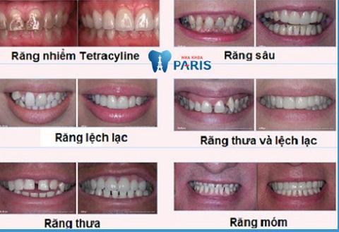 Các trường hợp nên bọc răng sứ hàm dưới