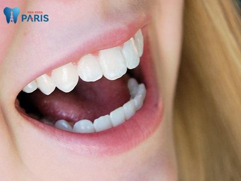 Bọc răng sứ bao nhiêu răng để đẹp và thu hút?