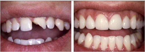 Bọc răng sứ cho răng mẻ