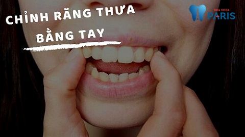 cách làm răng thưa khít lại tại nhà, răng thưa phải làm sao, răng thưa nên làm gì, răng thưa và hô, răng thưa thì sao, răng thưa và cách khắc phục, răng thưa thì phải làm sao
