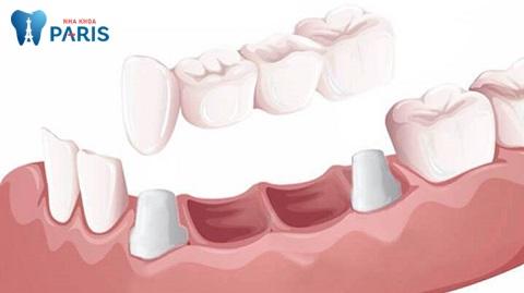 Trường hợp nào nên làm cầu răng sứ Titan?