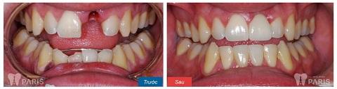Cầu răng Titan đem lại hiệu quả thẩm mỹ cao