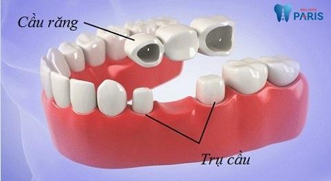 Làm cầu răng Titan giúp khách hàng tiết kiệm chi phí