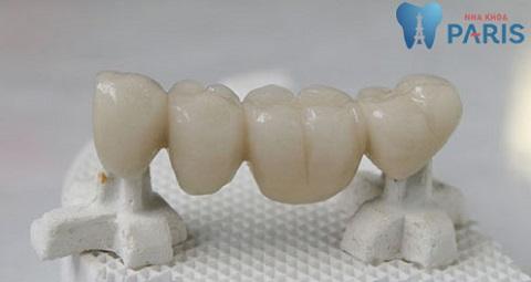 Cầu răng Titan có thể duy trì độ bền khoảng từ 7 - 10 năm