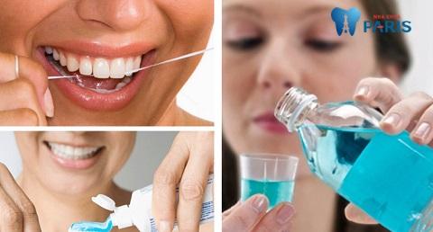 Cách vệ sinh răng miệng đúng cách