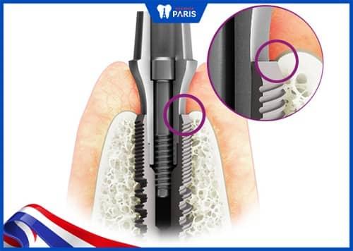 trụ implant khác gì nhau