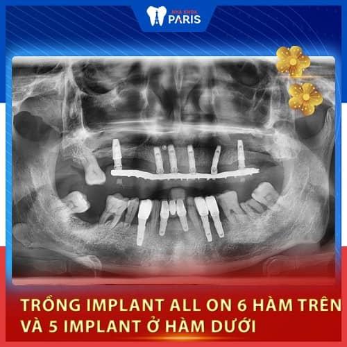 làm răng implant bền không