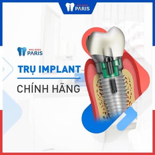 implant dùng có lâu dài không
