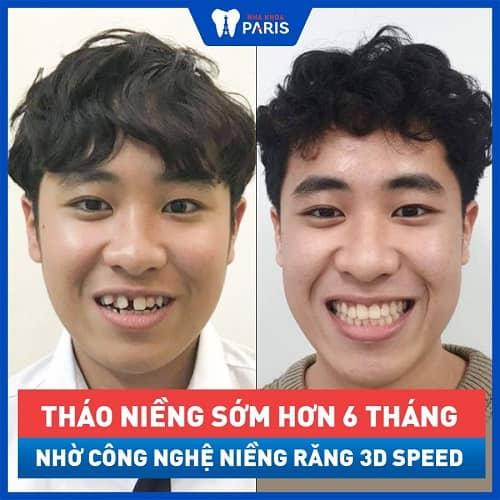 trước và sau khi niềng răng invisalign