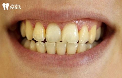 Nên tẩy trắng răng khi nào