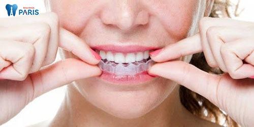 kinh nghiệm ngậm máng tẩy trắng răng