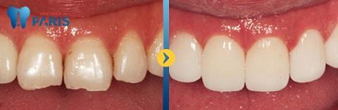 Làm lại răng đem lại giá trị thẩm mỹ cao