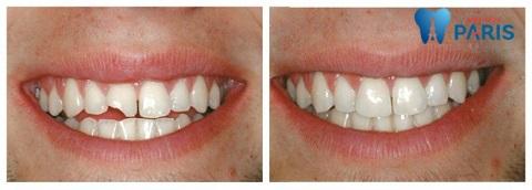 Bọc răng sứ cho răng cửa mẻ - Biện pháp tối ưu, mang lại nụ cười hoàn hảo