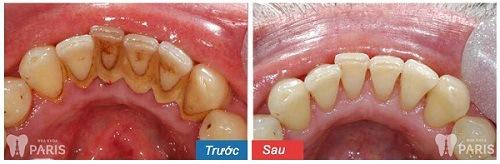 lấy cao răng trắng răng không
