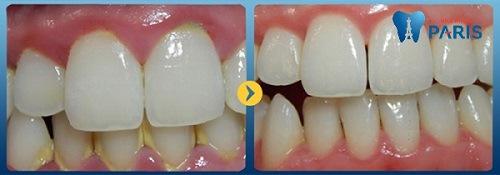 lấy cao răng có làm răng trắng lên không