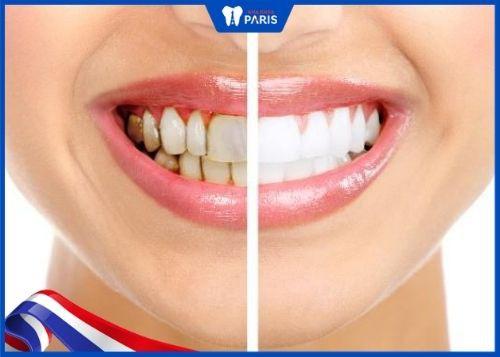 lấy cao răng và làm trắng