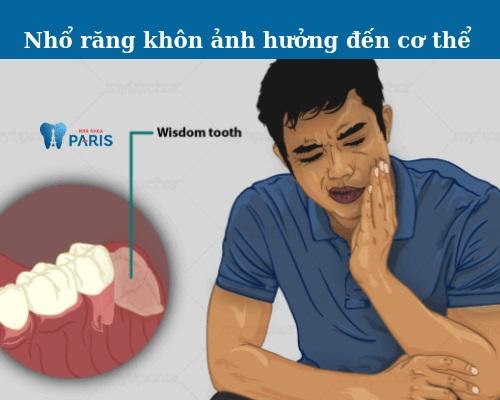 Nhổ răng khôn có ảnh hưởng gì không