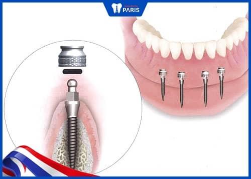 nhược điểm khi làm răng mini implant
