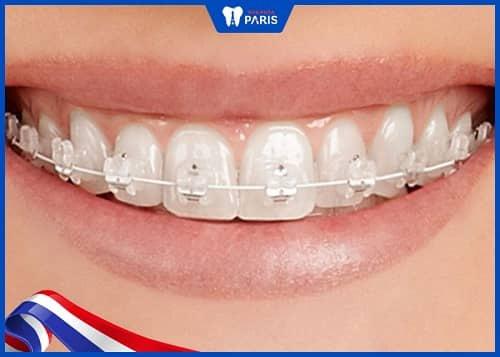 nhược điểm của nẹp răng sứ
