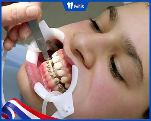 Niềng răng giá rẻ - Nên hay không?
