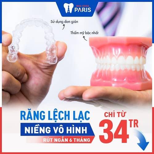 ưu điểm của nẹp răng invisalign