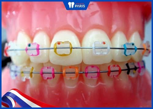 niềng răng sứ dây kim loại