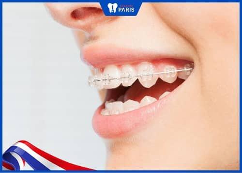 niềng răng mắc cài sứ là như thế nào