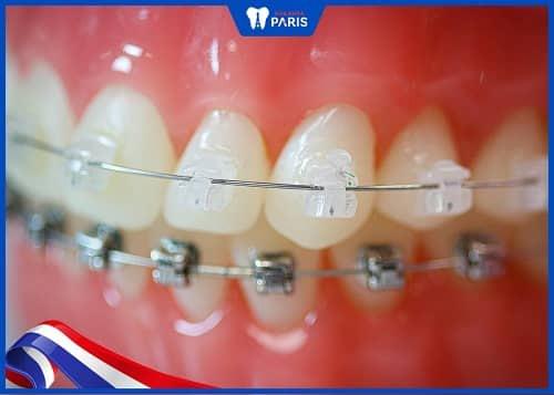 niềng răng sứ truyền thống
