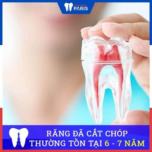 răng đã cắt chóp tồn tại bao lâu