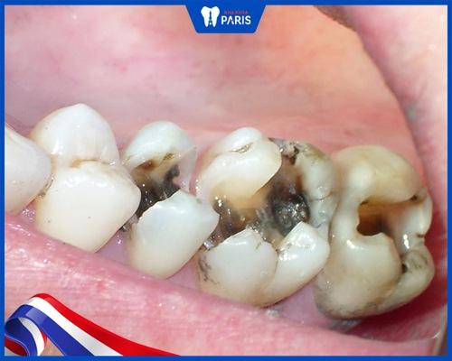 Sâu răng khôn có nguy hiểm không?